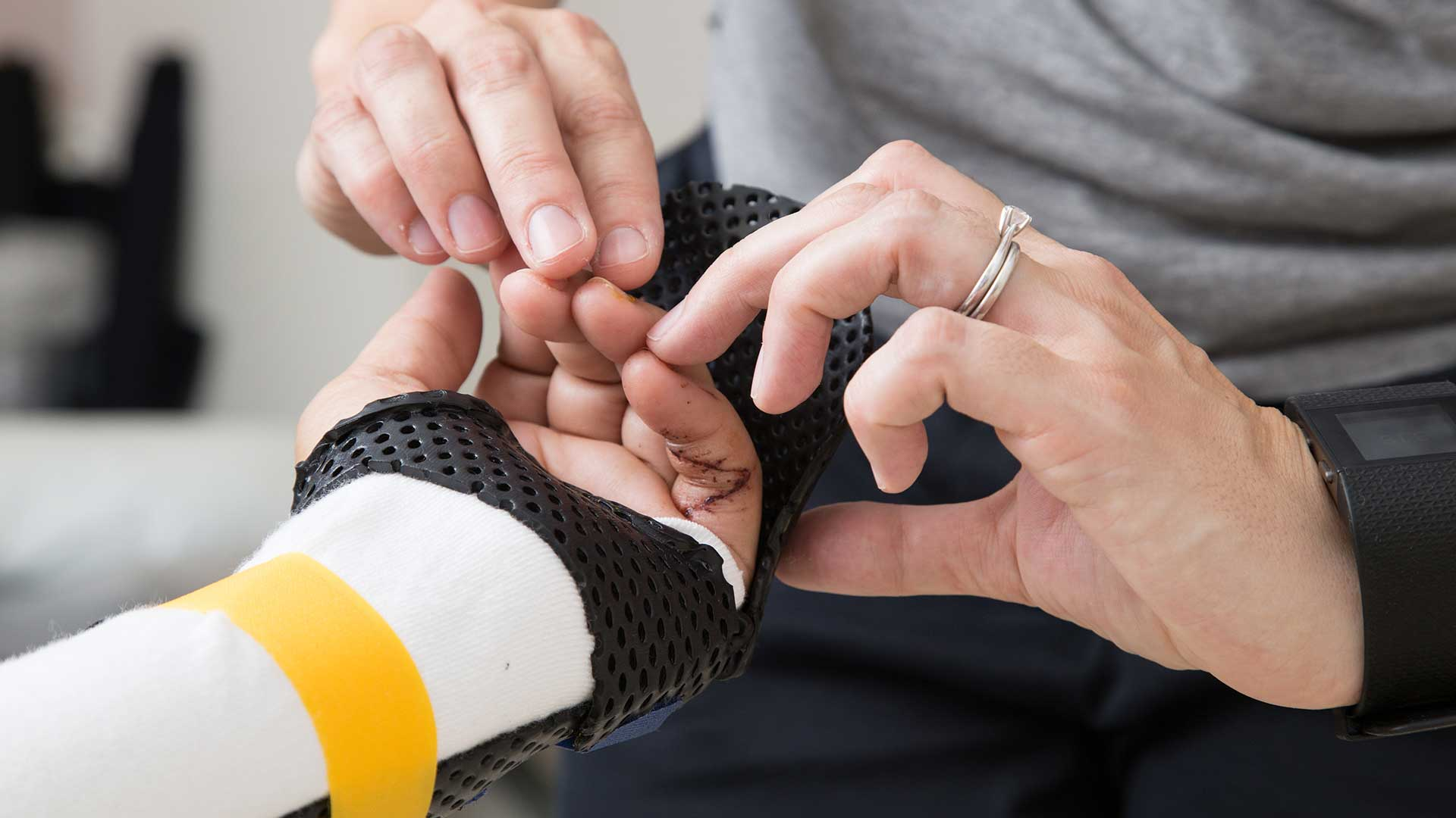 Hand Therapy | Bathurst Specialist Centre